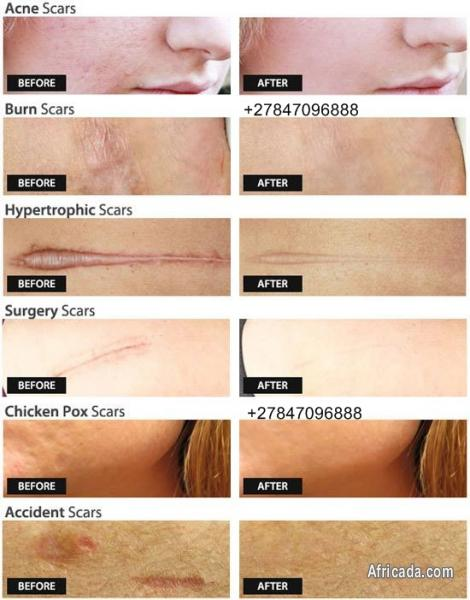 Best Tattoo Off Gel Scar Removal Cream And Body Spot Marks Health Beauty For Sale In Johannesburg Gauteng Africada Com Mobile 48902